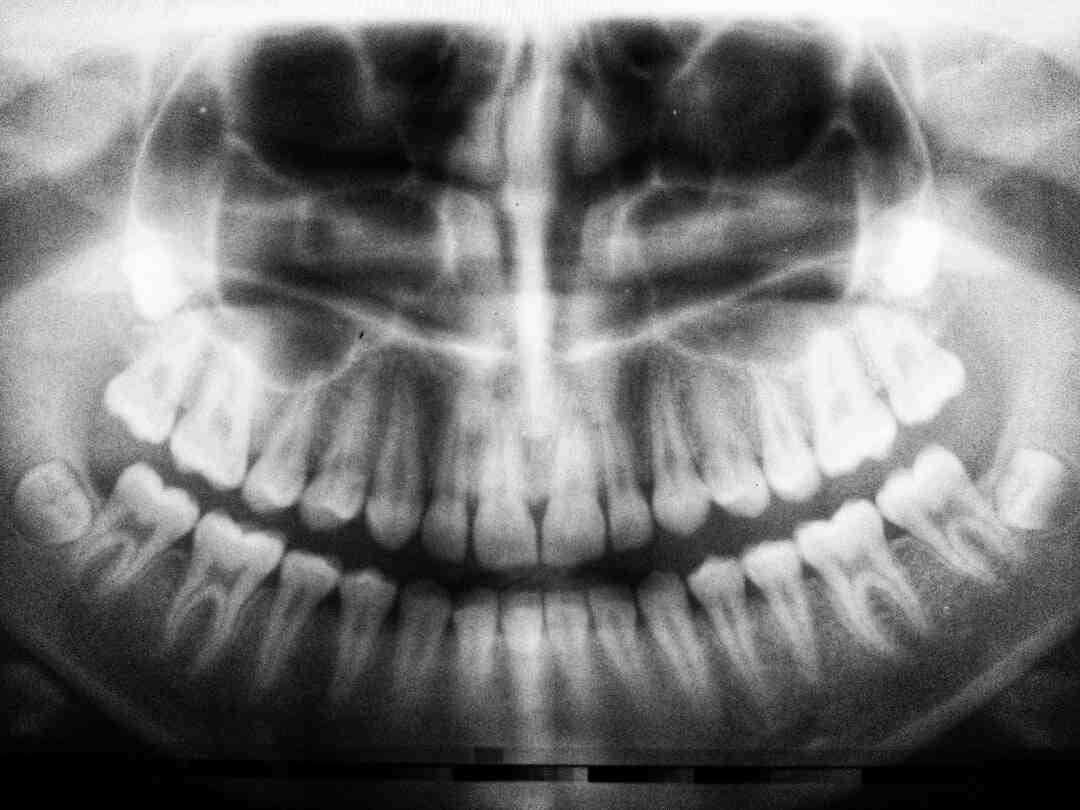 Comment devenir Assistant(e) dentaire : Formation, Métier, salaire,